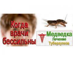 Медведки- от туберкулеза